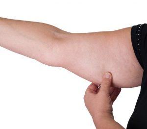 ดูดไขมันแขน pantip