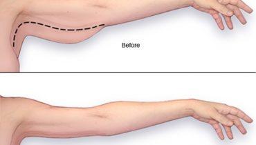 บริการดูดไขมัน ผ่าตัดกระเพาะลดน้ำหนัก รักษาเต้านมโตของผู้ชาย ตัดหนังหน้าท้อง ตัดหนังส่วนเกิน